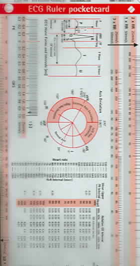 ECG Ruler Pocketcard By Borm Bruckmeier Publishing (COR)